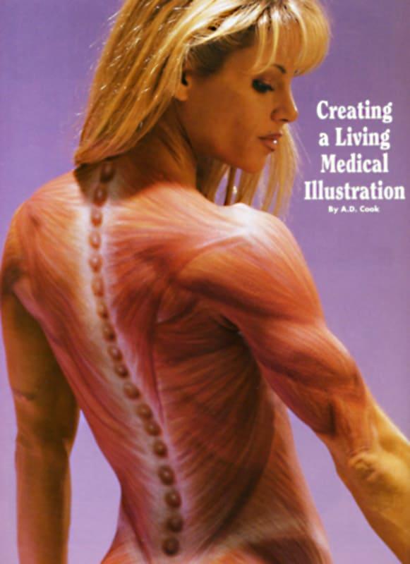 medical-illustration